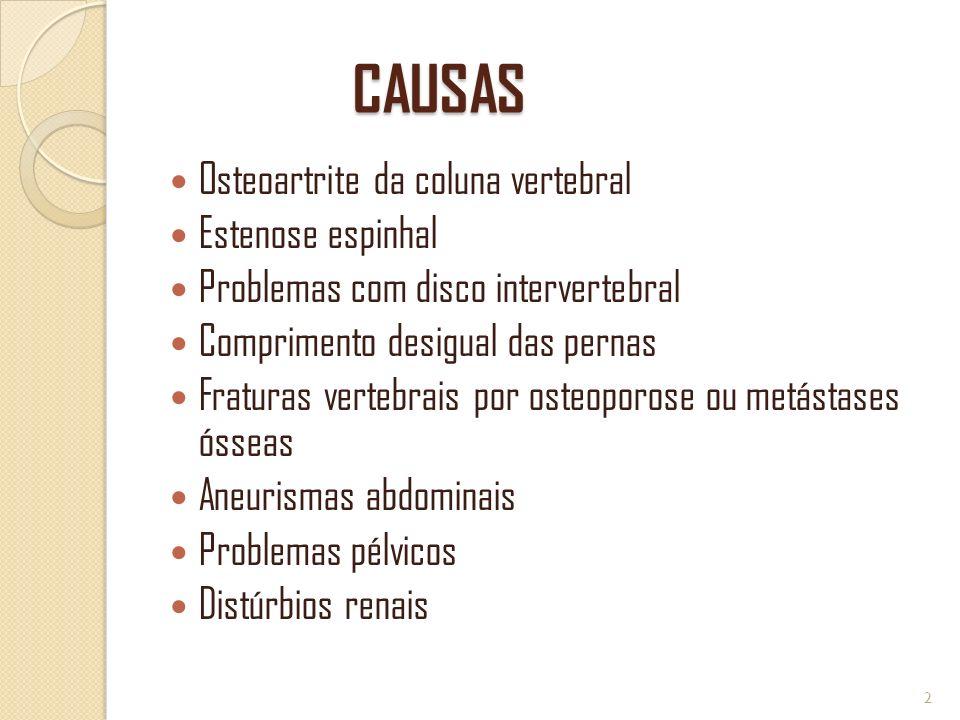 CAUSAS Osteoartrite da coluna vertebral Estenose espinhal