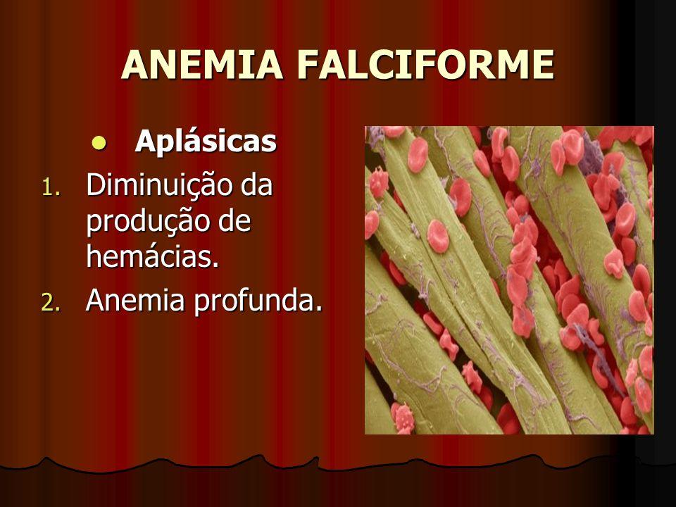 ANEMIA FALCIFORME Aplásicas Diminuição da produção de hemácias.