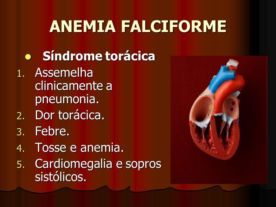 ANEMIA FALCIFORME Síndrome torácica