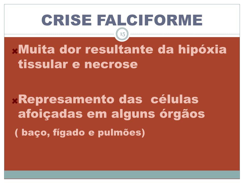 CRISE FALCIFORME Muita dor resultante da hipóxia tissular e necrose