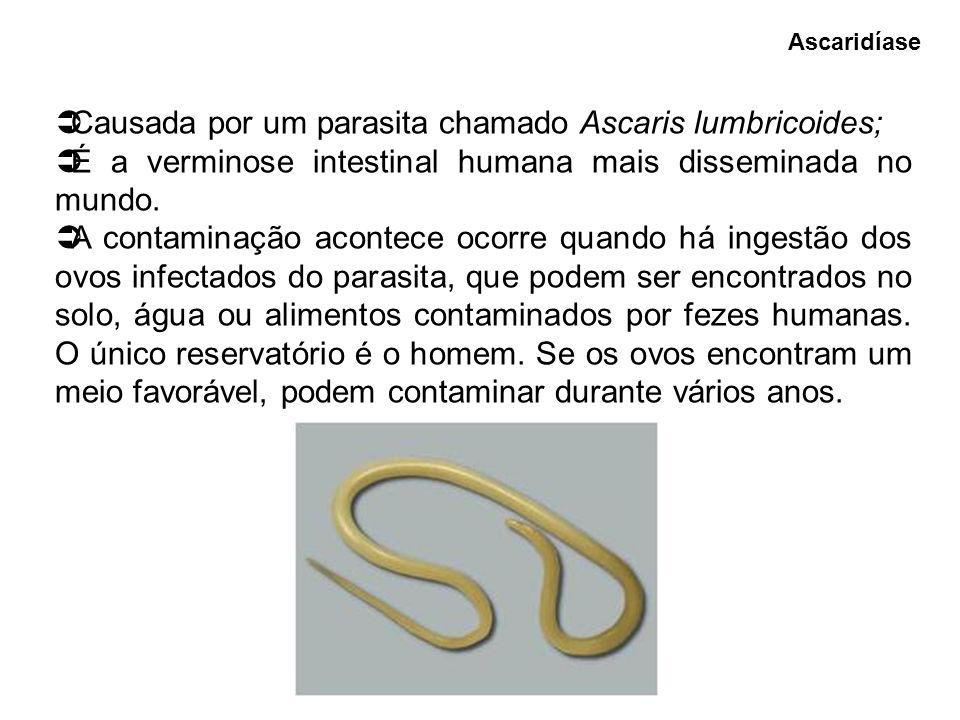 Causada por um parasita chamado Ascaris lumbricoides;