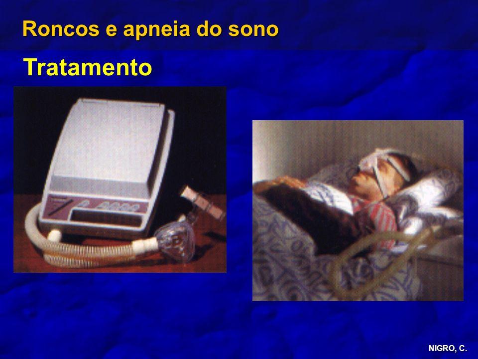 Roncos e apneia do sono Tratamento