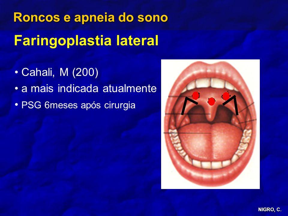 Faringoplastia lateral