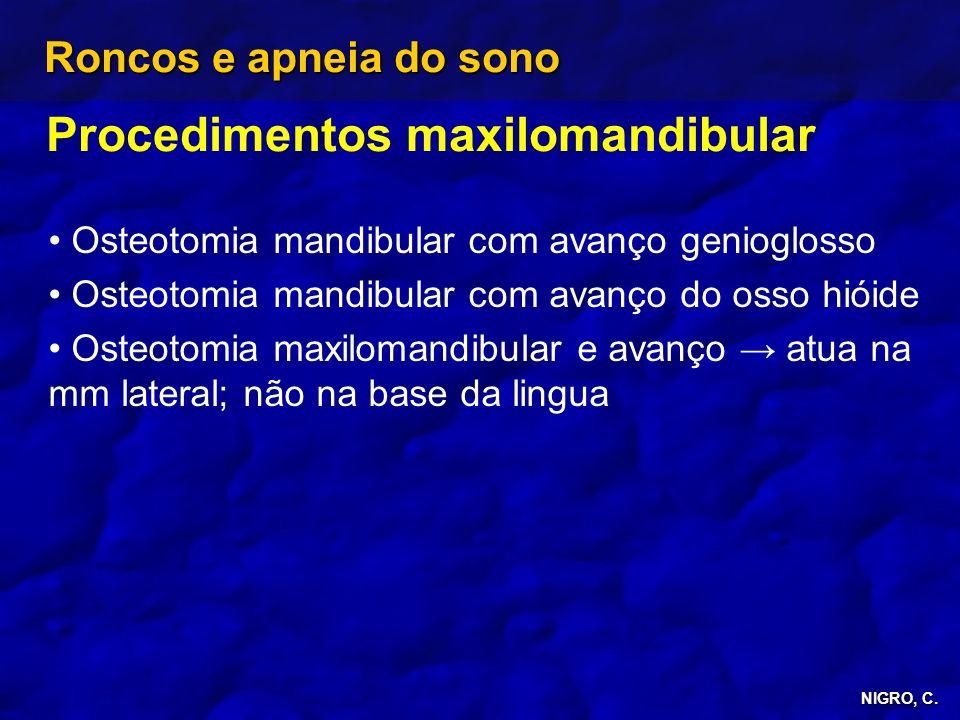 Procedimentos maxilomandibular