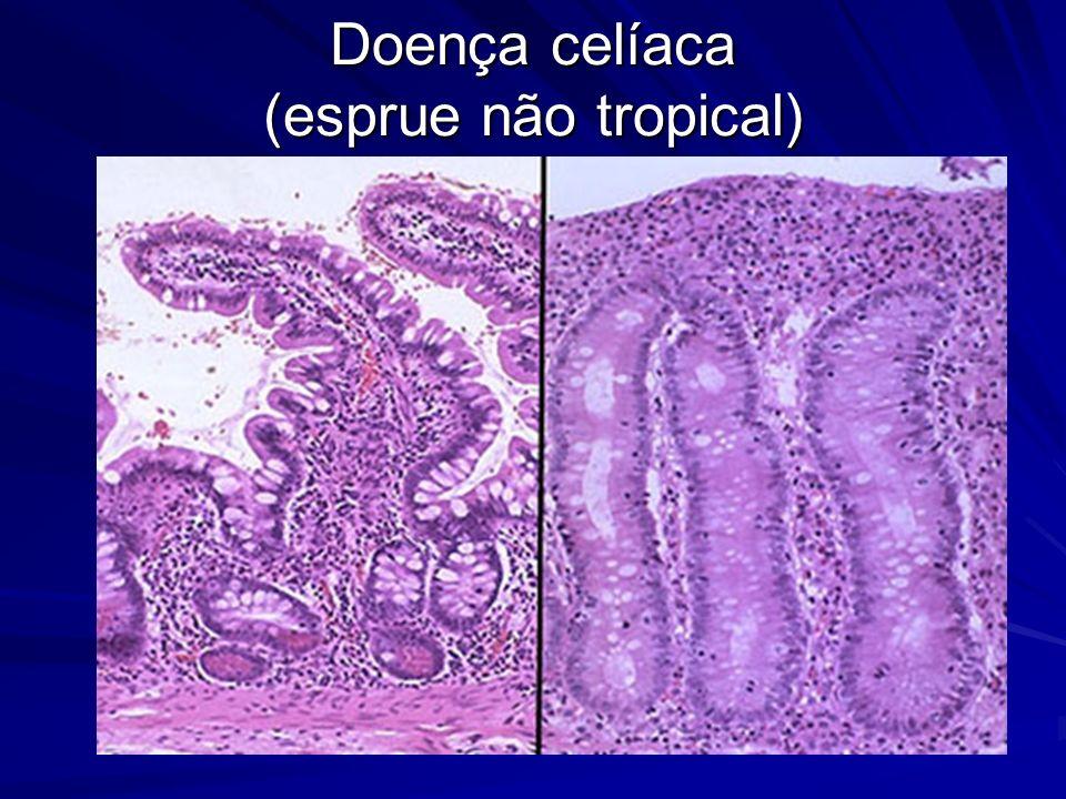 Doença celíaca (esprue não tropical)