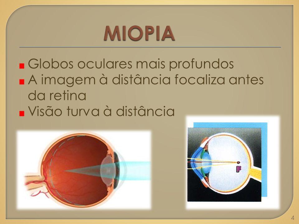 MIOPIA Globos oculares mais profundos