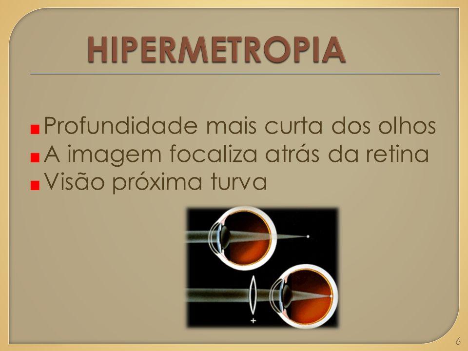 HIPERMETROPIA Profundidade mais curta dos olhos