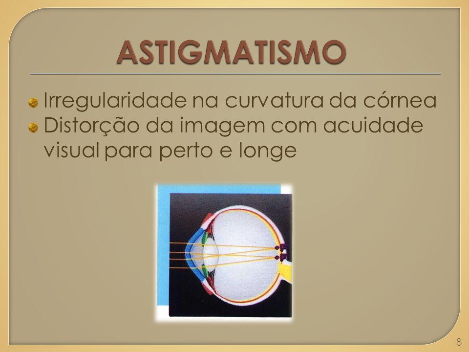 ASTIGMATISMO Irregularidade na curvatura da córnea
