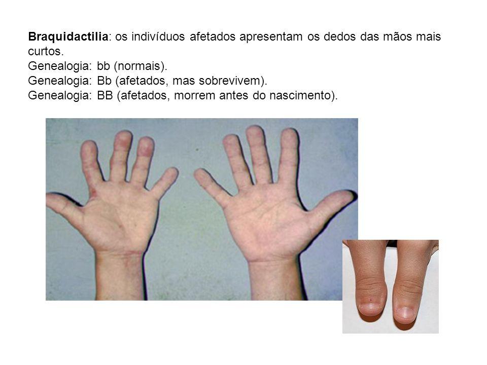Braquidactilia: os indivíduos afetados apresentam os dedos das mãos mais curtos.