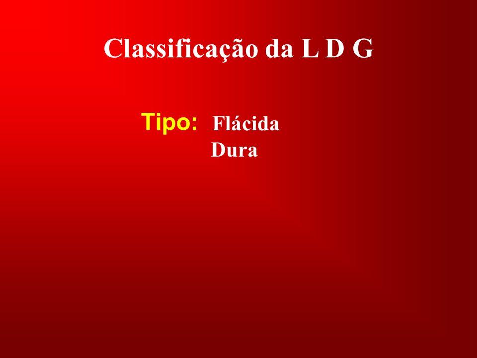 Classificação da L D G Tipo: Dura Flácida