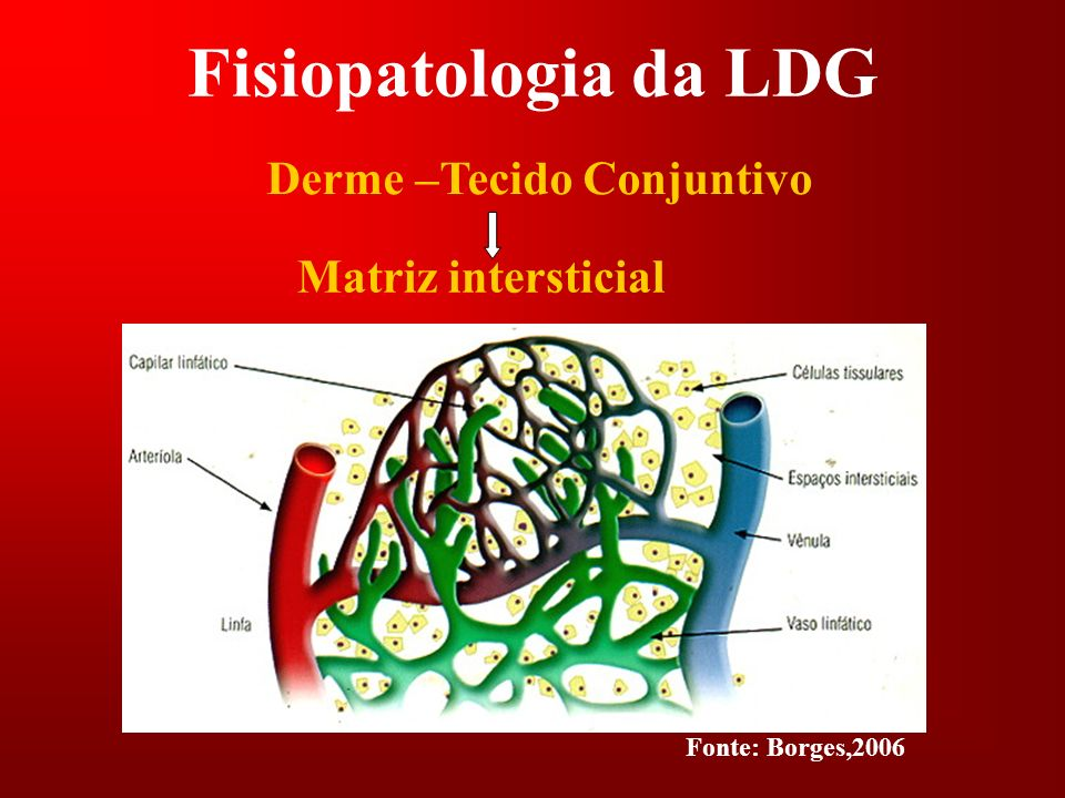 Fisiopatologia da LDG Derme –Tecido Conjuntivo Matriz intersticial