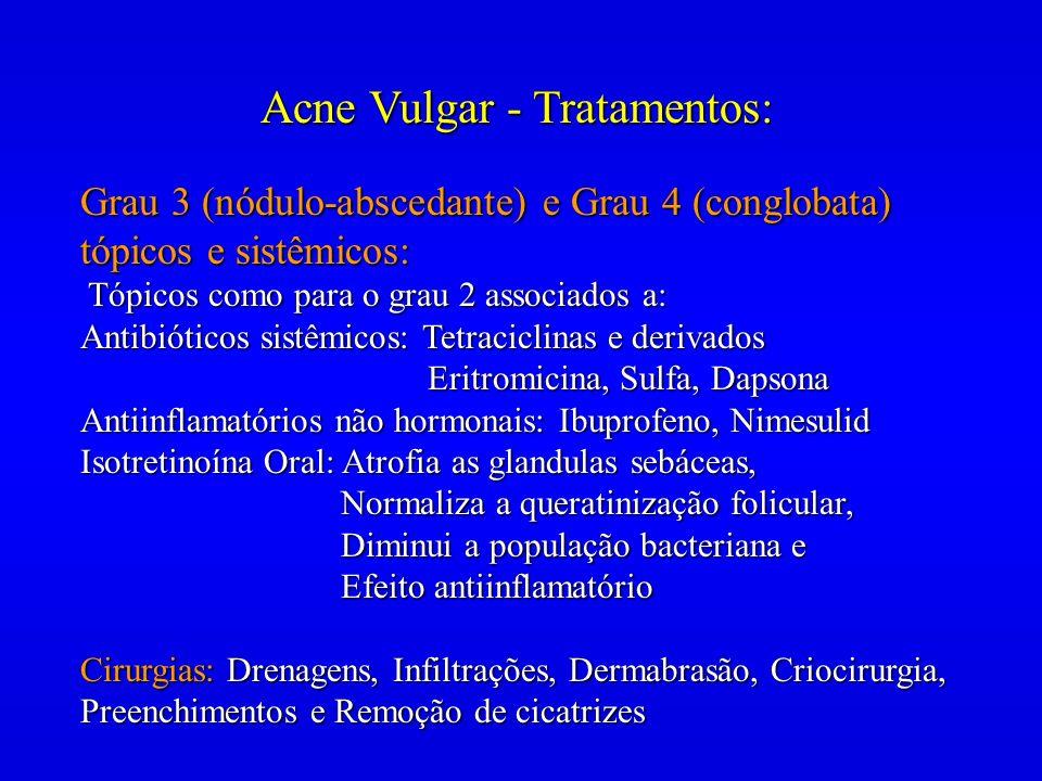 Acne Vulgar - Tratamentos: