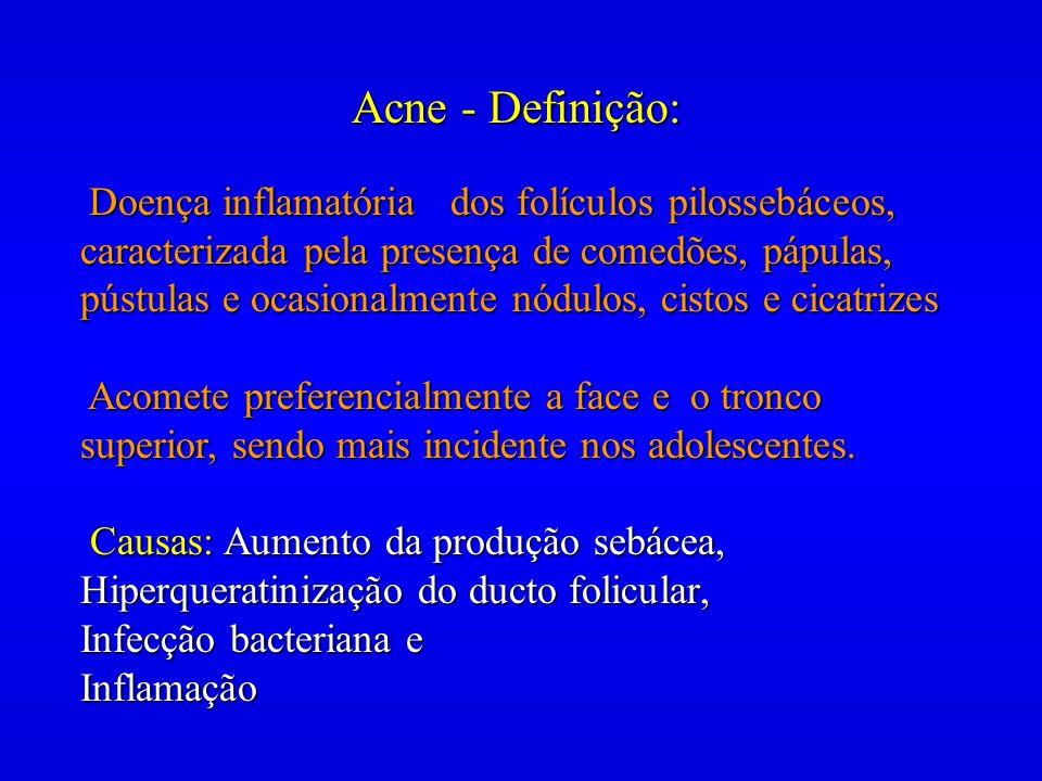 Acne - Definição: