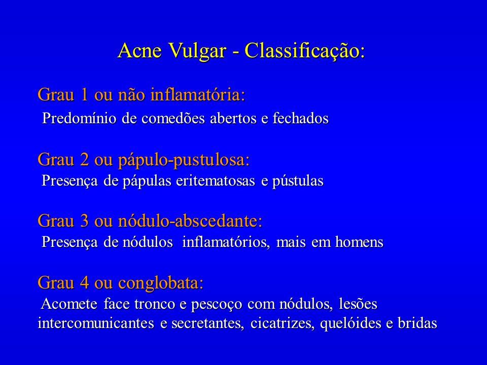 Acne Vulgar - Classificação: