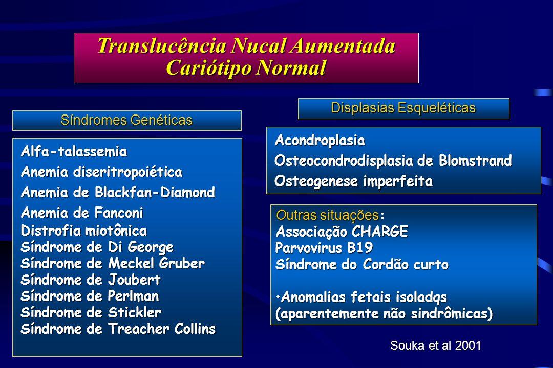 Translucência Nucal Aumentada Cariótipo Normal