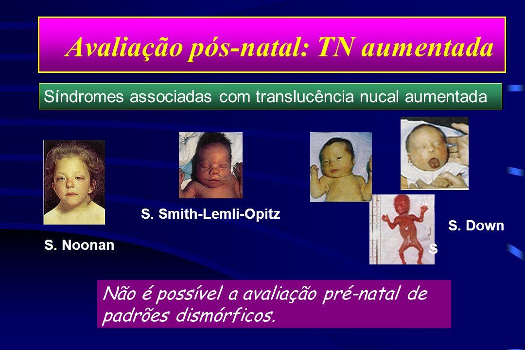 Avaliação pós-natal: TN aumentada