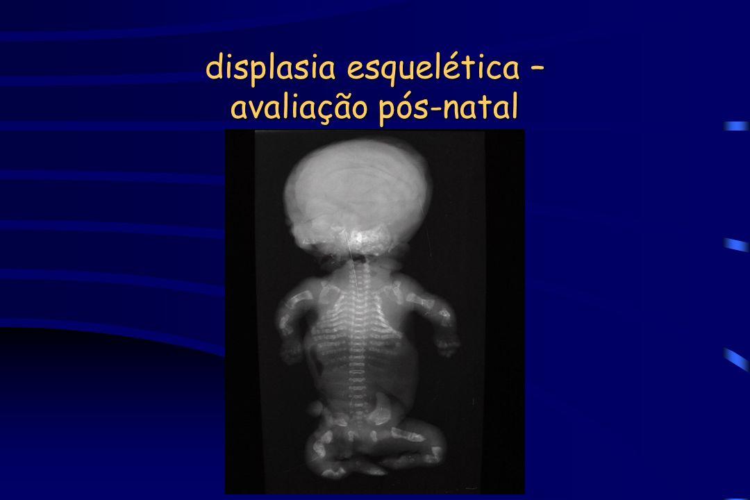 displasia esquelética – avaliação pós-natal