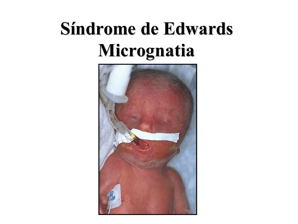 Síndrome de Edwards Micrognatia
