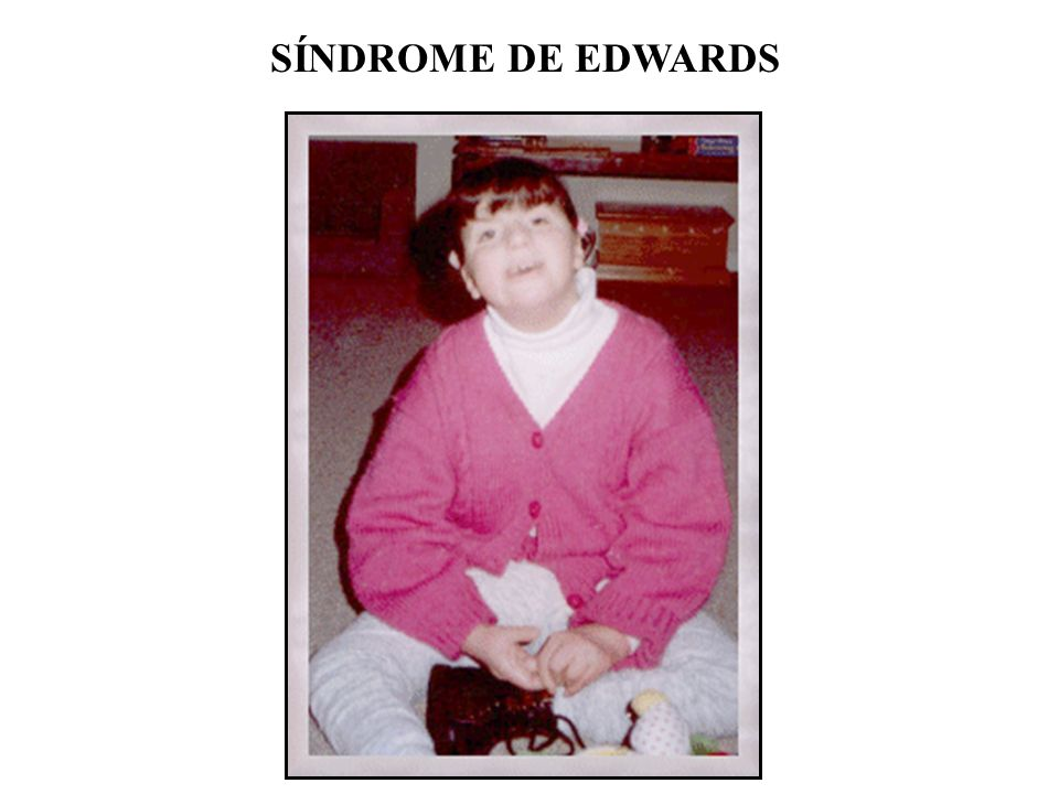 SÍNDROME DE EDWARDS