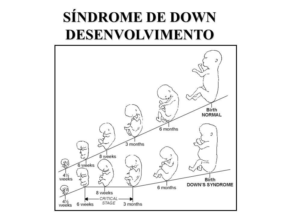 SÍNDROME DE DOWN DESENVOLVIMENTO