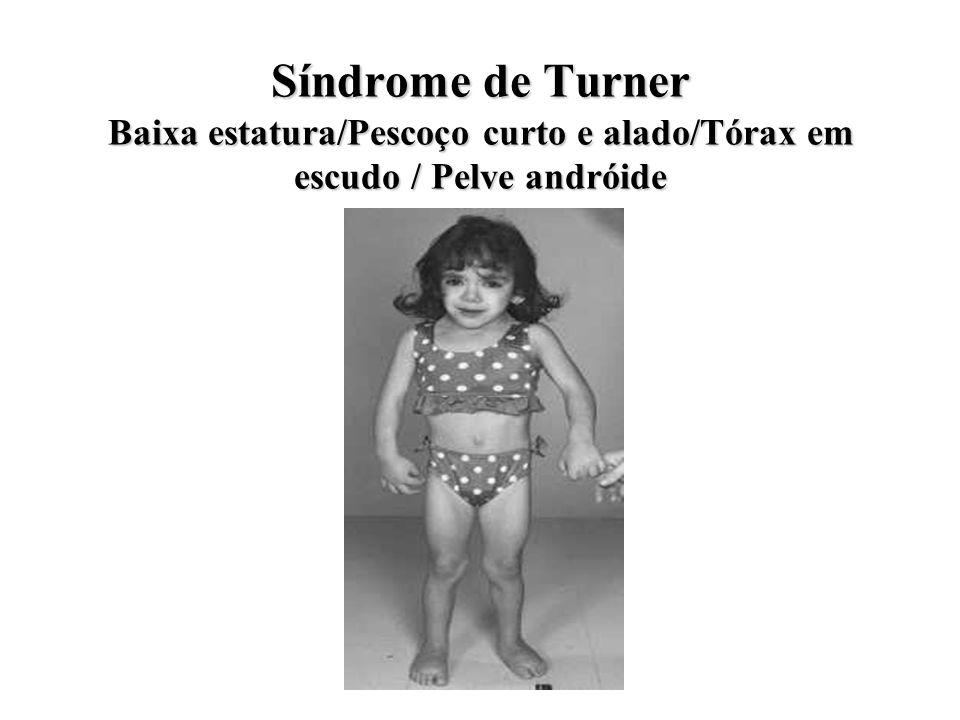 Síndrome de Turner Baixa estatura/Pescoço curto e alado/Tórax em escudo / Pelve andróide