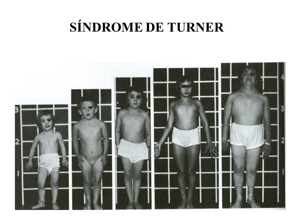 SÍNDROME DE TURNER