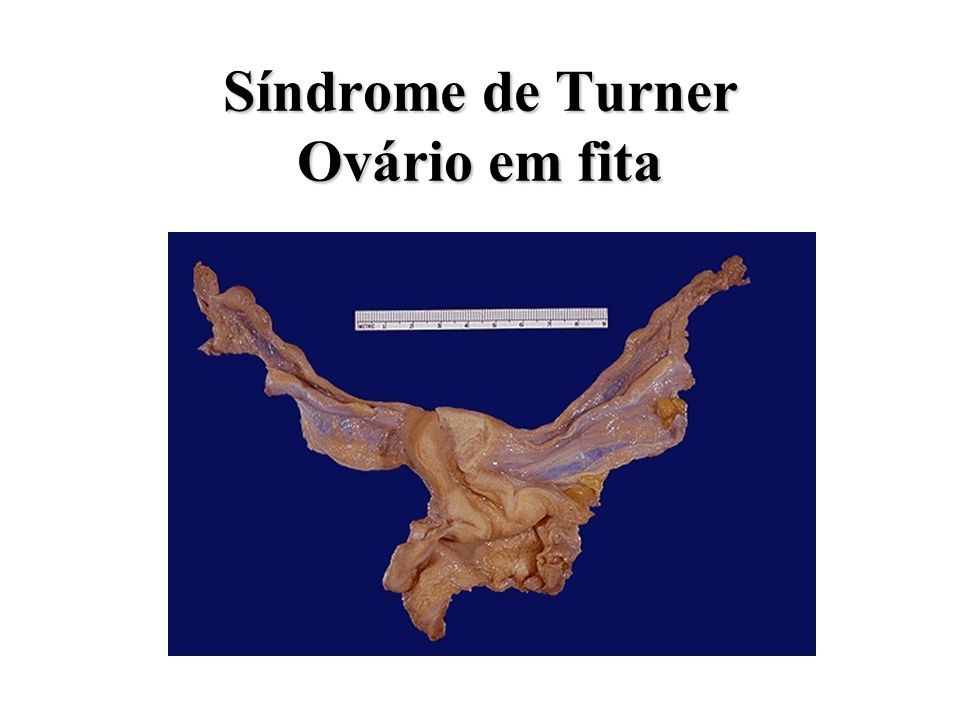 Síndrome de Turner Ovário em fita