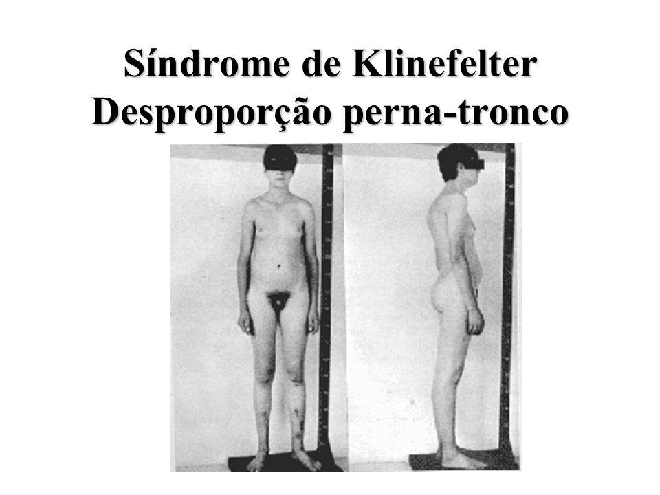Síndrome de Klinefelter Desproporção perna-tronco