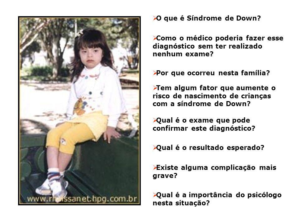 O que é Síndrome de Down Como o médico poderia fazer esse diagnóstico sem ter realizado nenhum exame
