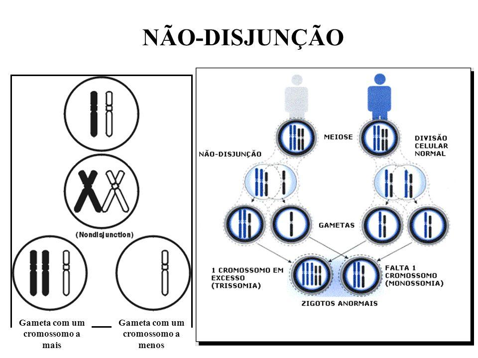 Gameta com um cromossomo a mais Gameta com um cromossomo a menos