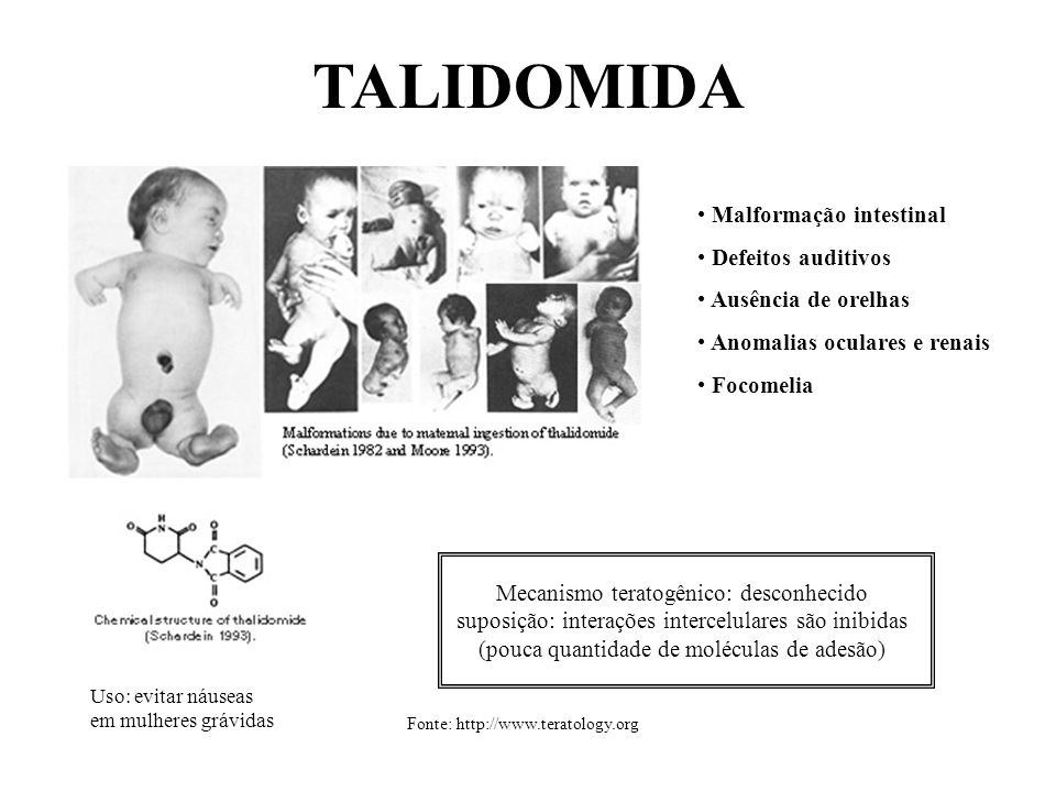 TALIDOMIDA Malformação intestinal Defeitos auditivos