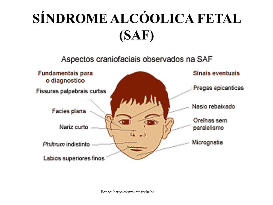 SÍNDROME ALCÓOLICA FETAL (SAF)