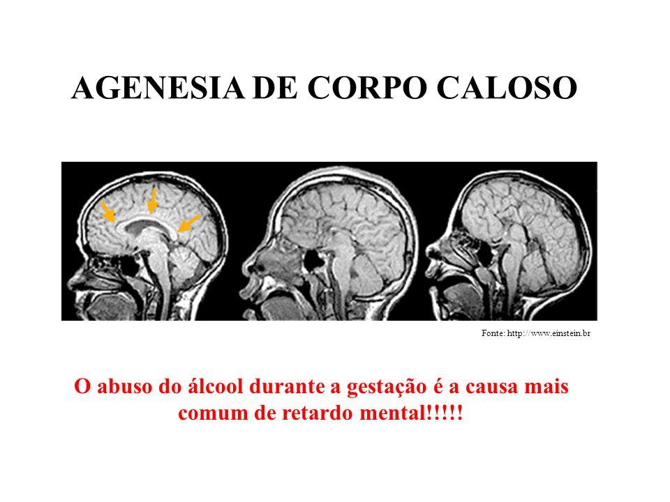 AGENESIA DE CORPO CALOSO