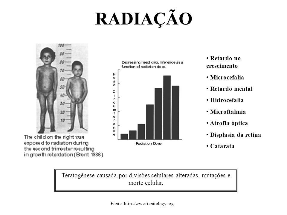 RADIAÇÃO Retardo no crescimento Microcefalia Retardo mental
