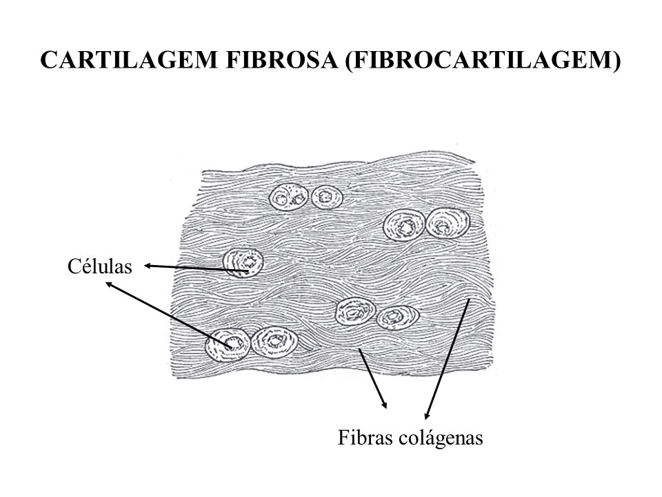 CARTILAGEM FIBROSA (FIBROCARTILAGEM)