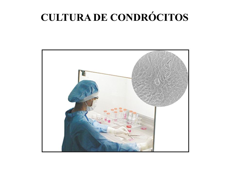 CULTURA DE CONDRÓCITOS
