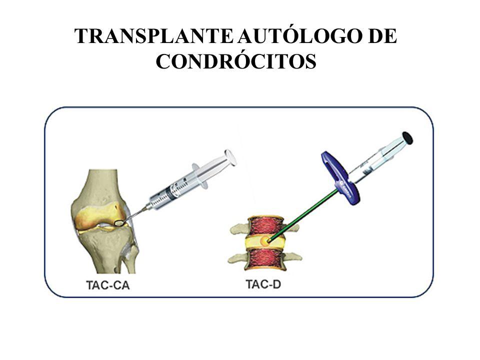 TRANSPLANTE AUTÓLOGO DE CONDRÓCITOS