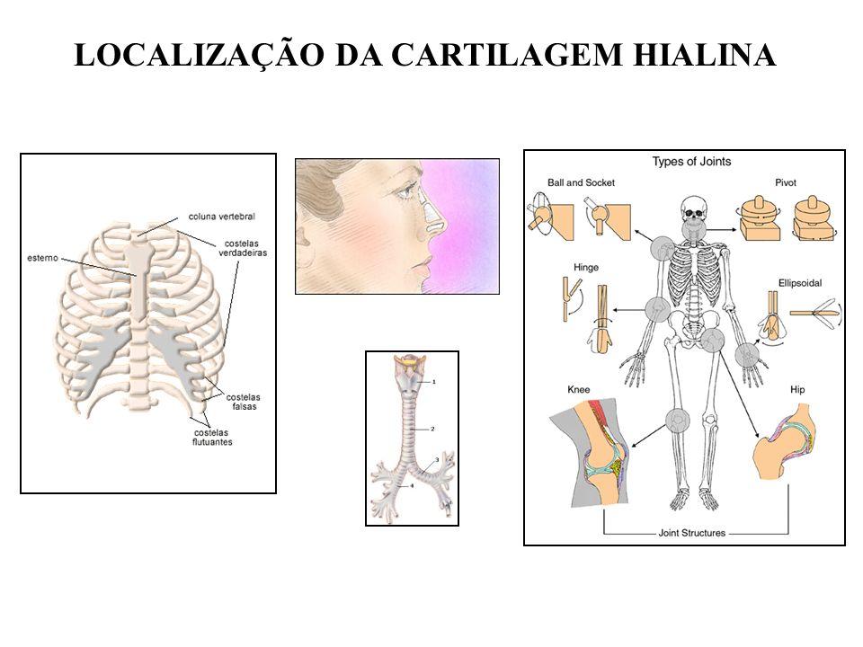LOCALIZAÇÃO DA CARTILAGEM HIALINA