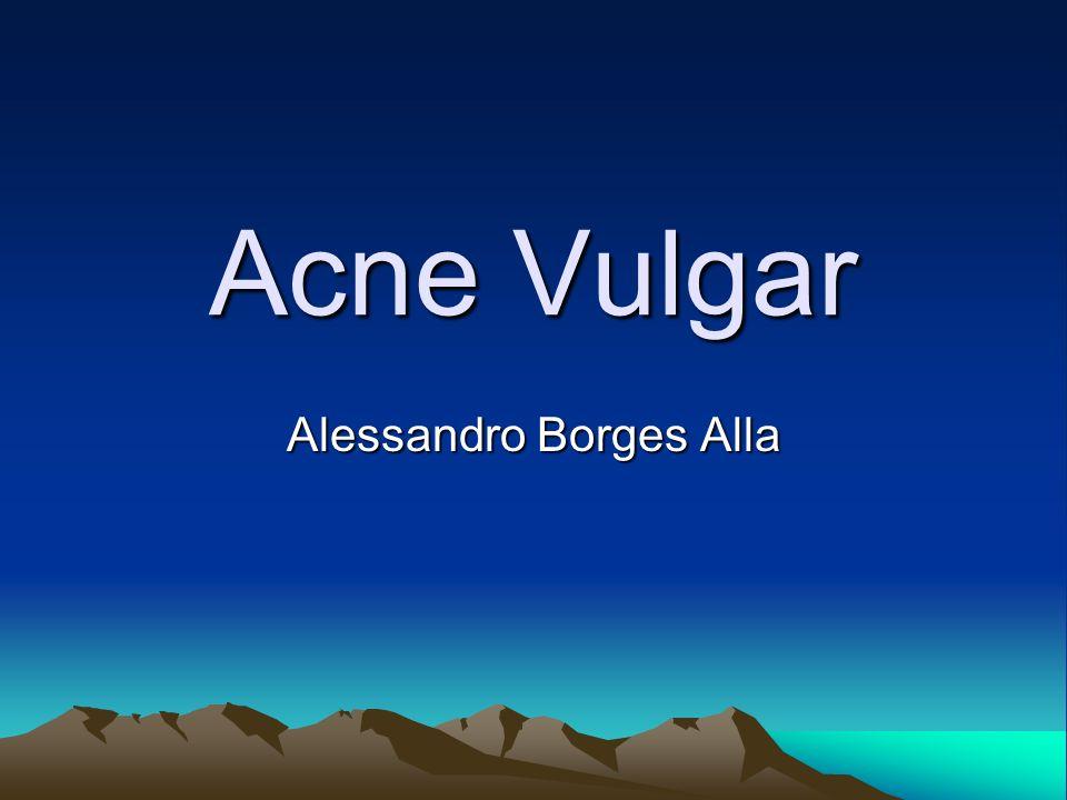 Alessandro Borges Alla