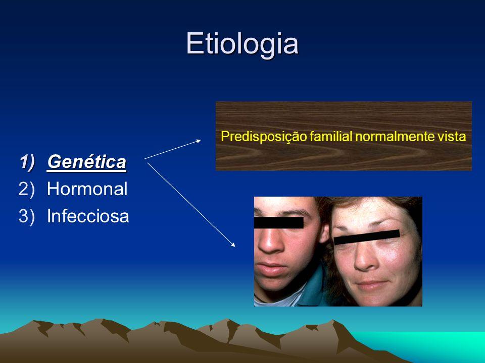 Etiologia Genética Hormonal Infecciosa