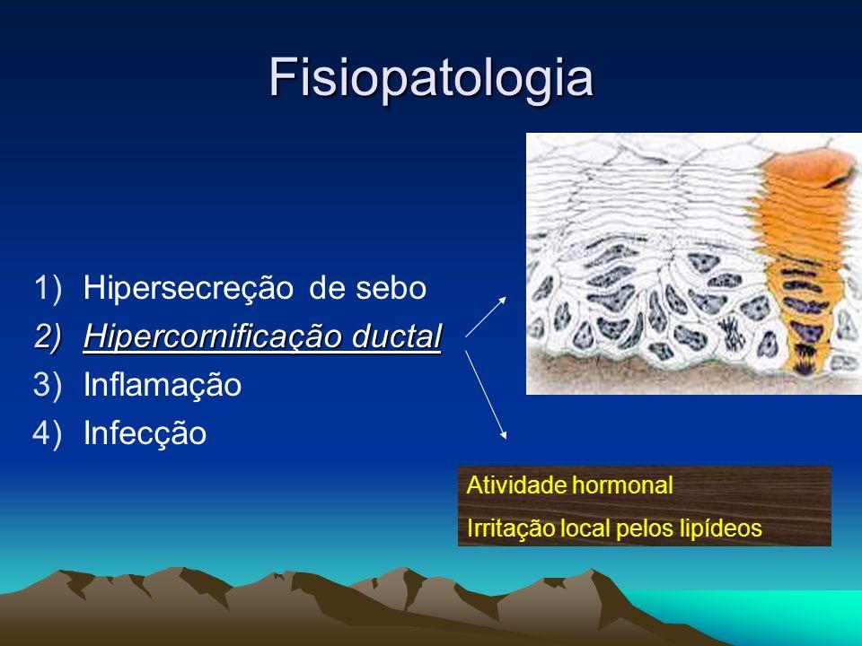 Fisiopatologia Hipersecreção de sebo Hipercornificação ductal
