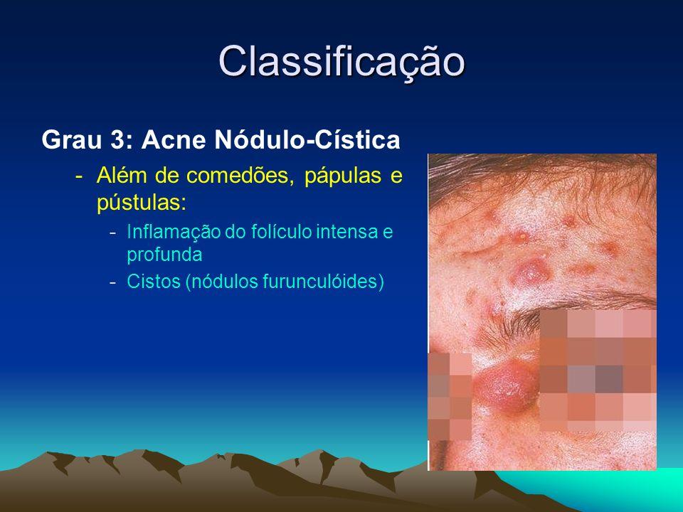 Classificação Grau 3: Acne Nódulo-Cística