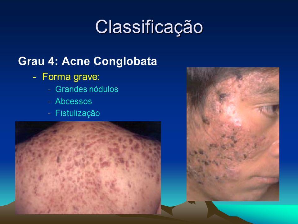 Classificação Grau 4: Acne Conglobata Forma grave: Grandes nódulos