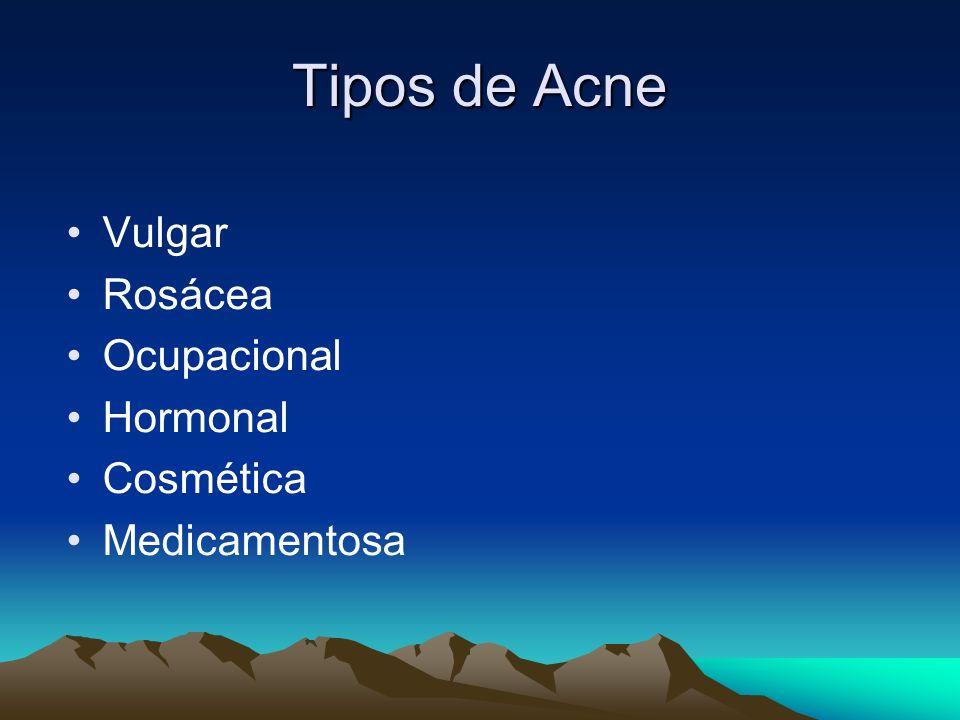 Tipos de Acne Vulgar Rosácea Ocupacional Hormonal Cosmética