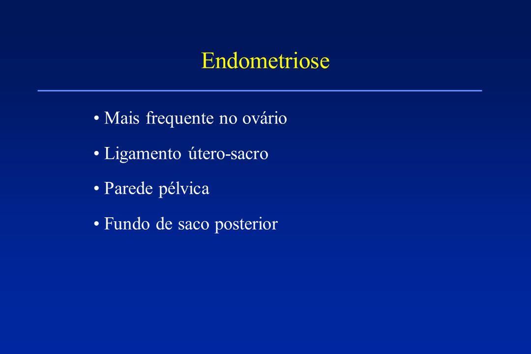 Endometriose Mais frequente no ovário Ligamento útero-sacro