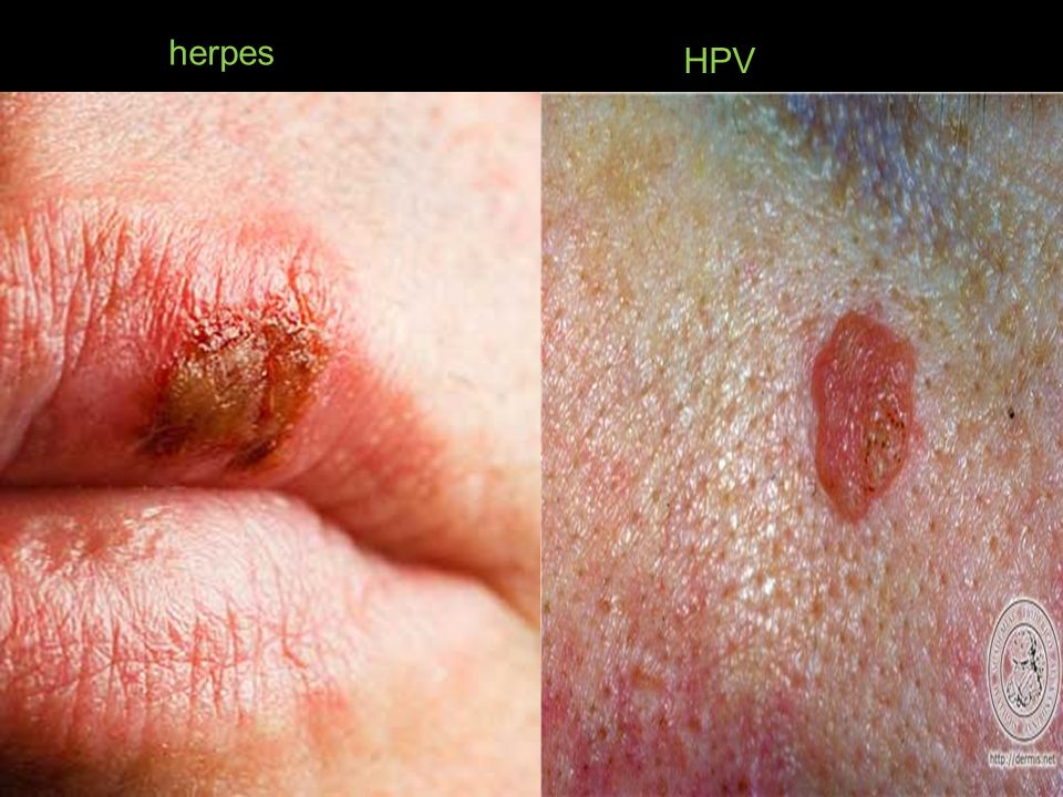 herpes HPV