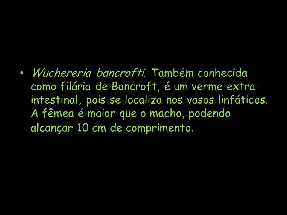 Wuchereria bancrofti.