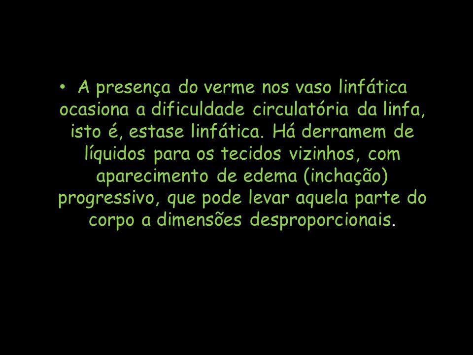 A presença do verme nos vaso linfática ocasiona a dificuldade circulatória da linfa, isto é, estase linfática.