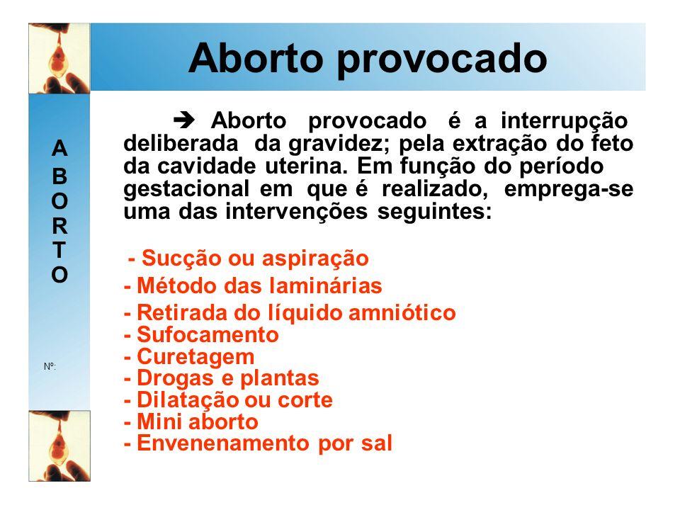 Aborto provocado - Método das laminárias