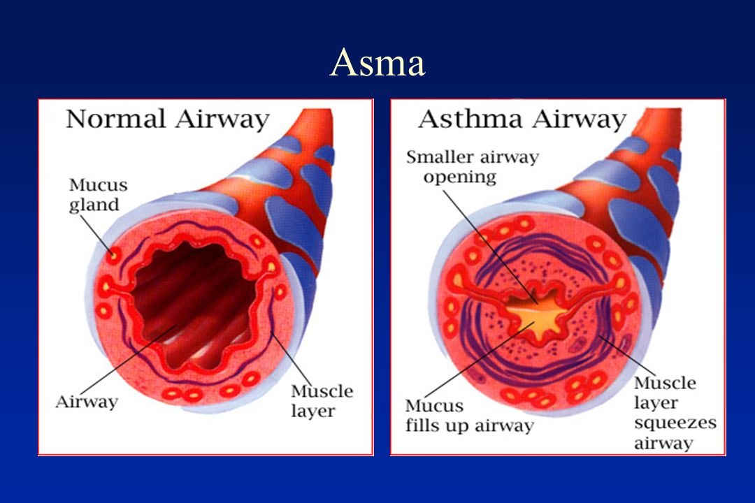 Asma When exposed to an asthma trigger…